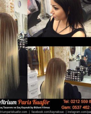 Saç Kaynak Nasıl Çıkartılır?